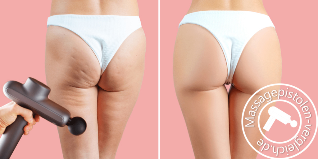 Massagepistole gegen Cellulite